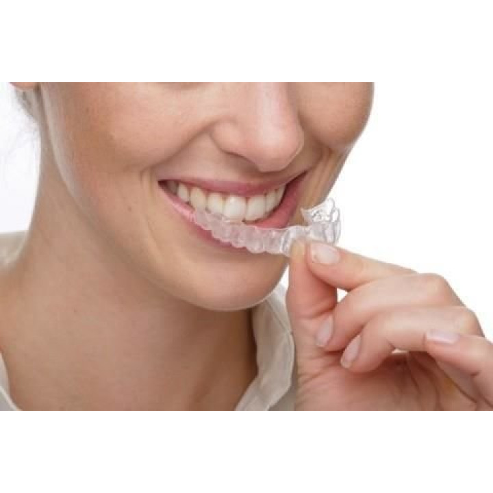 Universal relaxation mouthguard against night squeaking of teeth - bruxism