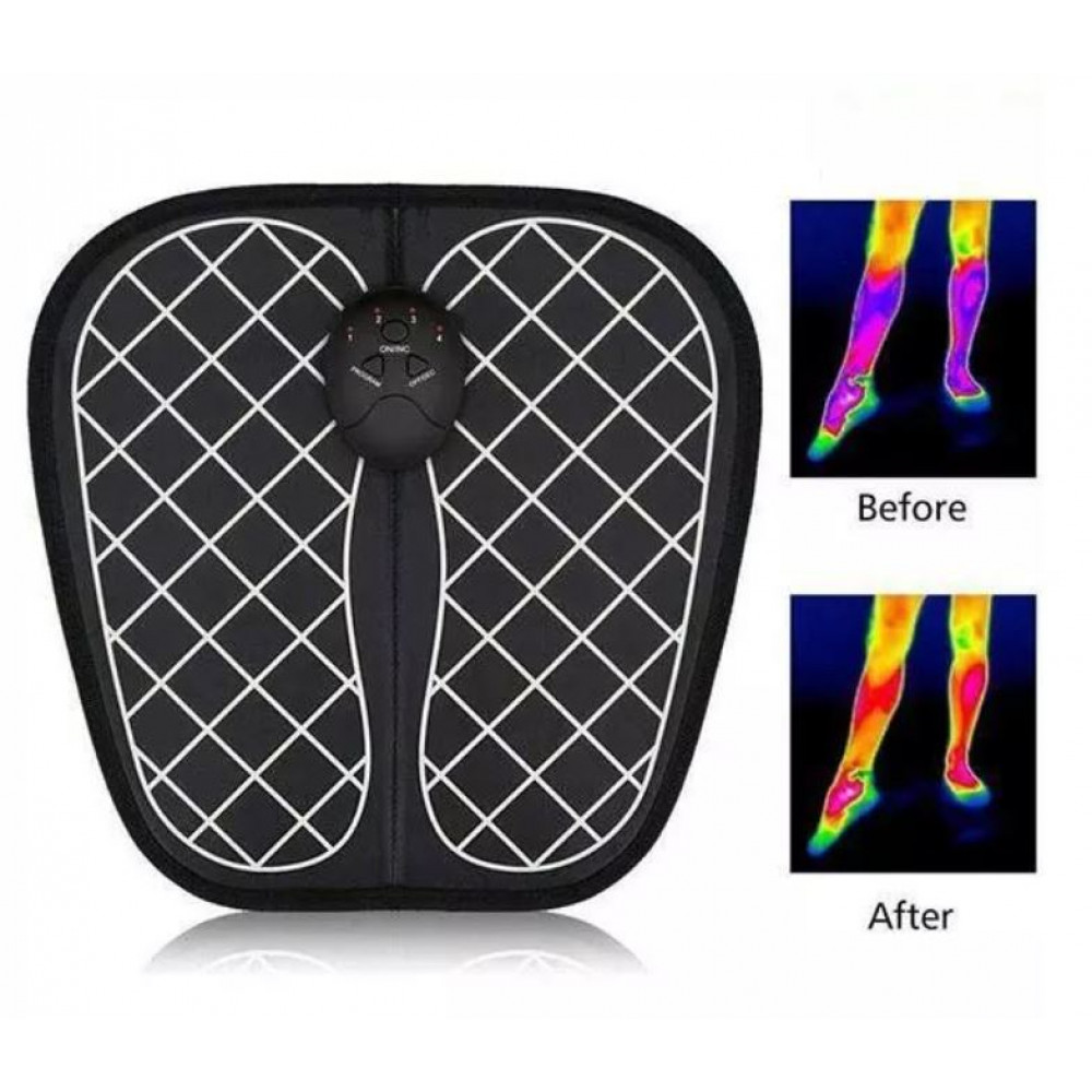 Microstimulator for feet and legs, EMS Foot Massager for improving blood circulation and acupuncture massage