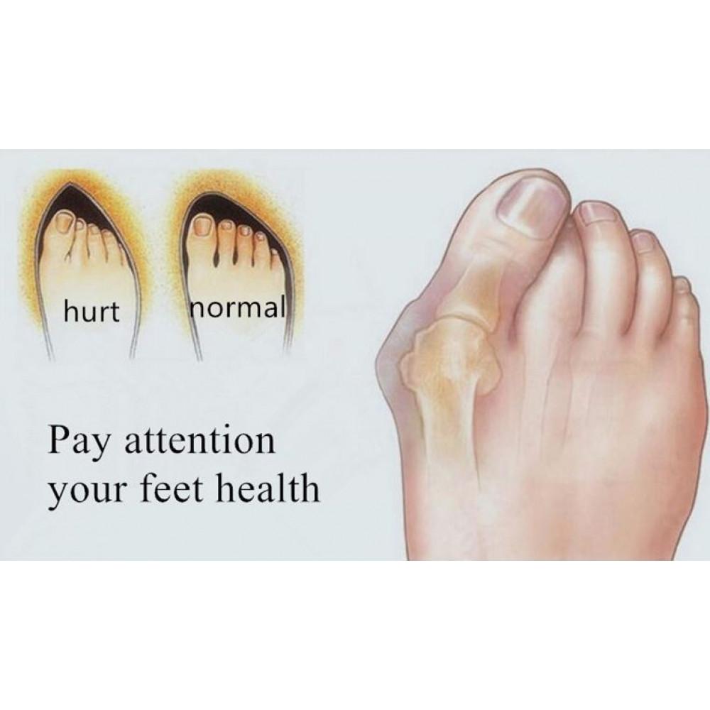 Large toe gel retainer