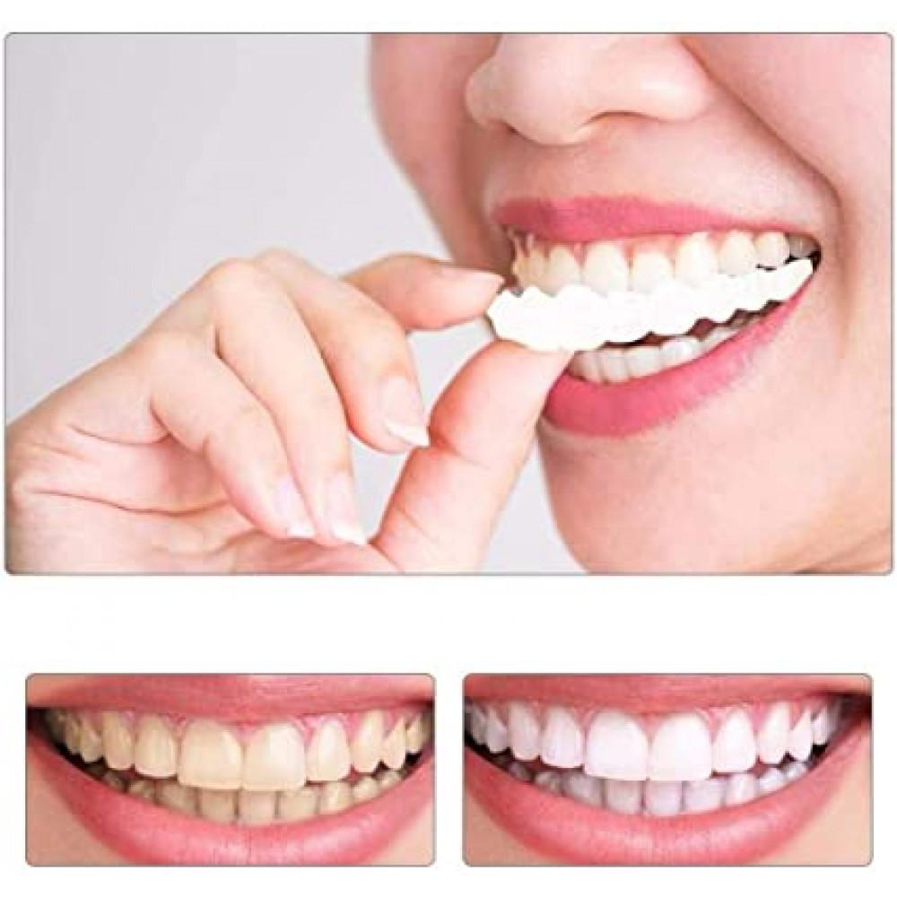 Instant Smile Temporary Teeth Hollywood Smile Veneers