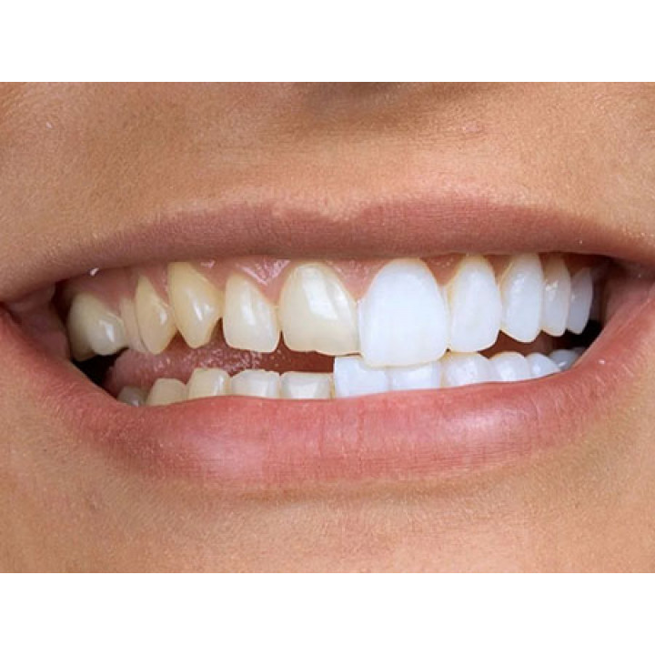 Temporary reusable lumineers - to correct the color and tone of the teeth, Hollywood smile