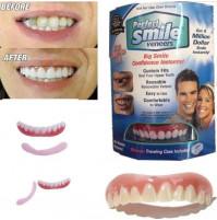 Perfect Smile Veneers for teeth
